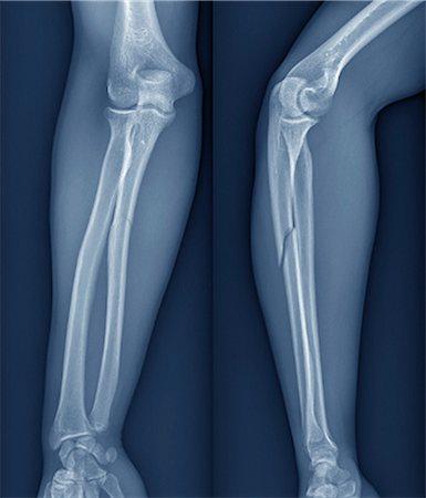 Broken arm, X-ray Stock Photo - Premium Royalty-Free, Code: 679-05797302