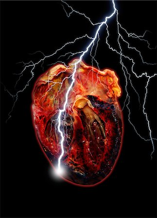 spark - Heart attack, conceptual artwork Stock Photo - Premium Royalty-Free, Code: 679-05797577
