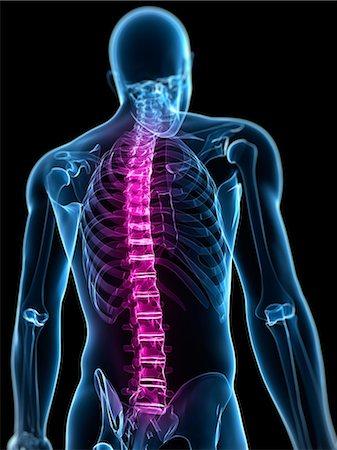 spinal column - Back pain, conceptual artwork Stock Photo - Premium Royalty-Free, Code: 679-05798012