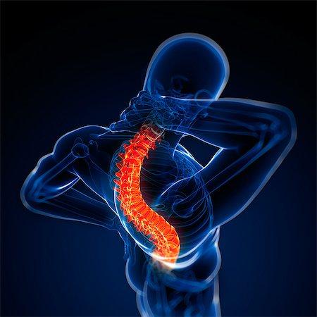 spinal column - Back pain, conceptual artwork Stock Photo - Premium Royalty-Free, Code: 679-05798025