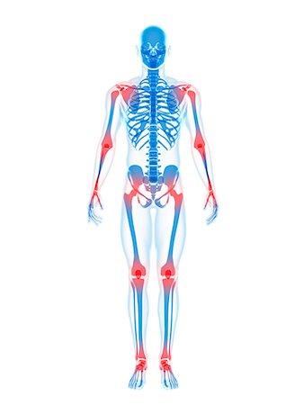 Joint pain, conceptual artwork Stock Photo - Premium Royalty-Free, Code: 679-05798028