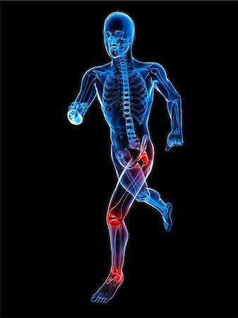 Joint pain, conceptual artwork Stock Photo - Premium Royalty-Free, Code: 679-05798031