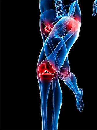 Joint pain, conceptual artwork Stock Photo - Premium Royalty-Free, Code: 679-05798032