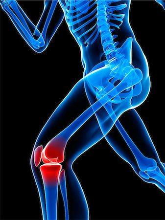 Knee pain, conceptual artwork Stock Photo - Premium Royalty-Free, Code: 679-05798033