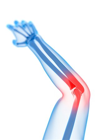 Elbow pain, conceptual artwork Stock Photo - Premium Royalty-Free, Code: 679-05798054