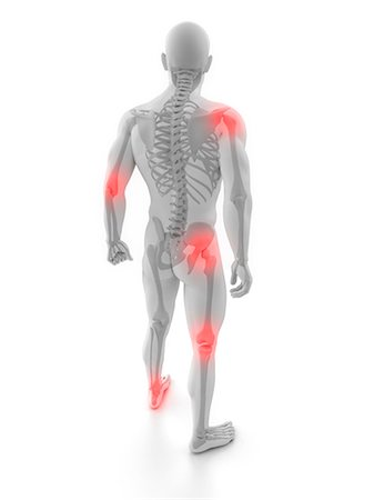Joint pain, conceptual artwork Stock Photo - Premium Royalty-Free, Code: 679-05798061