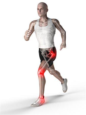 Joint pain, conceptual artwork Stock Photo - Premium Royalty-Free, Code: 679-05798062