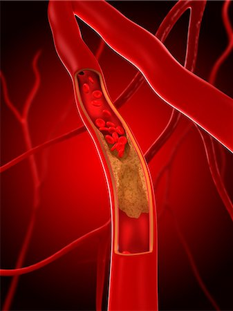 Narrowed artery, artwork Stock Photo - Premium Royalty-Free, Code: 679-05798535
