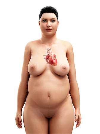Obese woman's heart, artwork Stock Photo - Premium Royalty-Free, Code: 679-05798886