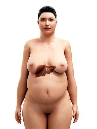 Obese woman's liver, artwork Stock Photo - Premium Royalty-Free, Code: 679-05798887
