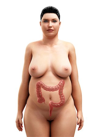 Obese woman's intestines, artwork Stock Photo - Premium Royalty-Free, Code: 679-05798891
