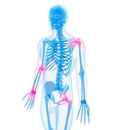 Joint pain, conceptual computer artwork. Stock Photo - Premium Royalty-Free, Code: 679-05995349