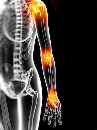 Joint pain, conceptual computer artwork. Stock Photo - Premium Royalty-Free, Code: 679-05995354