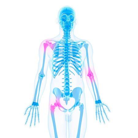Joint pain, conceptual computer artwork. Stock Photo - Premium Royalty-Free, Code: 679-05995350