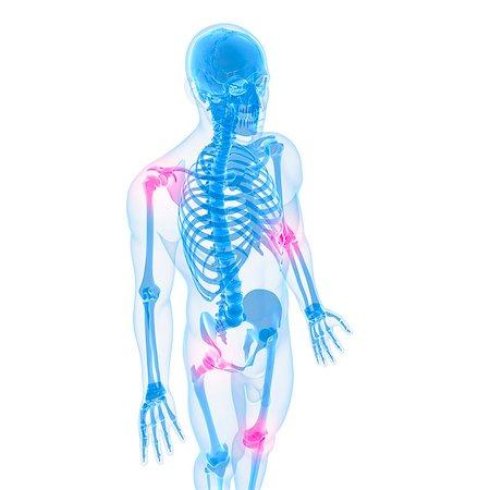 Joint pain, conceptual computer artwork. Stock Photo - Premium Royalty-Free, Code: 679-05995351