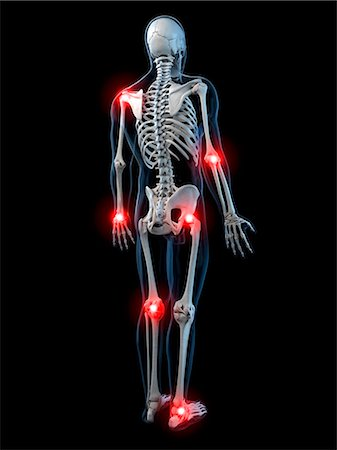 Joint pain, conceptual computer artwork. Stock Photo - Premium Royalty-Free, Code: 679-05995352