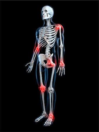 Joint pain, conceptual computer artwork. Stock Photo - Premium Royalty-Free, Code: 679-05995353
