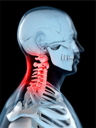 Neck pain, conceptual computer artwork. Stock Photo - Premium Royalty-Free, Code: 679-05995385