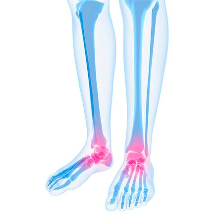 Ankle pain, conceptual computer artwork. Stock Photo - Premium Royalty-Free, Code: 679-05995387