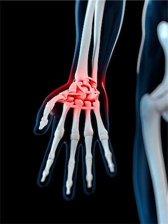 Wrist pain, conceptual computer artwork. Stock Photo - Premium Royalty-Free, Code: 679-05995389