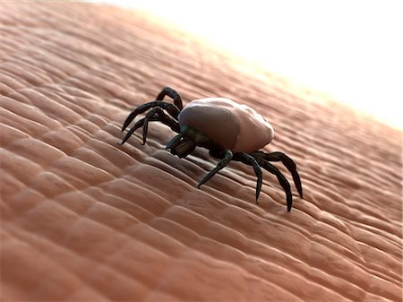 Tick (superfamily Ixodoidea) on human skin, computer artwork. Stock Photo - Premium Royalty-Free, Code: 679-05995719