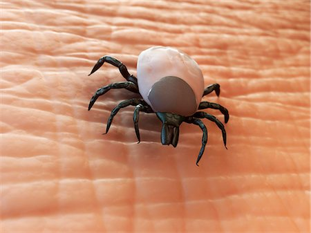 Tick (superfamily Ixodoidea) on human skin, computer artwork. Stock Photo - Premium Royalty-Free, Code: 679-05995711