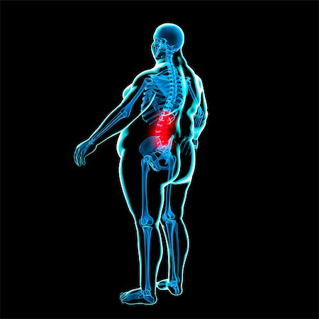 Back pain in obesity, conceptual computer artwork. Stock Photo - Premium Royalty-Free, Code: 679-05996436