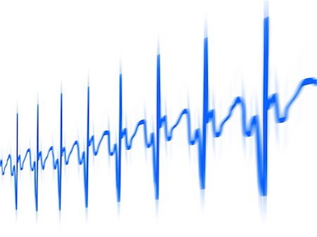 ECG. Computer artwork of an electrocardiogram (ECG) showing a normal heart rate. Stock Photo - Premium Royalty-Free, Code: 679-06199192