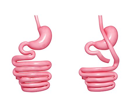 Gastric bypass. Computer artwork showing the digestive system, system, gastrointestinal, alimentary, gi, tract, gut, before (left) and after (right) a Roux-en-Y gastric bypass procedure. Stock Photo - Premium Royalty-Free, Code: 679-06674613