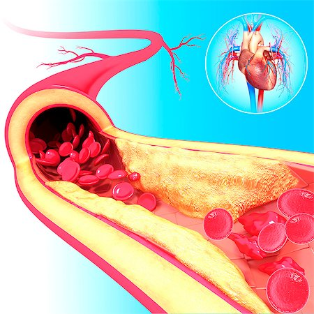 Atherosclerosis. Computer artwork of a narrowed artery, due to a cholesterol plaque. Stock Photo - Premium Royalty-Free, Code: 679-06674751