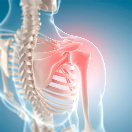 Shoulder pain, conceptual computer artwork. Stock Photo - Premium Royalty-Free, Code: 679-06672670