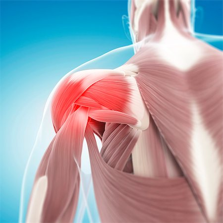 Shoulder pain, conceptual computer artwork. Stock Photo - Premium Royalty-Free, Code: 679-06672672