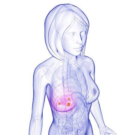 Breast cancer, computer artwork. Stock Photo - Premium Royalty-Free, Code: 679-06711366