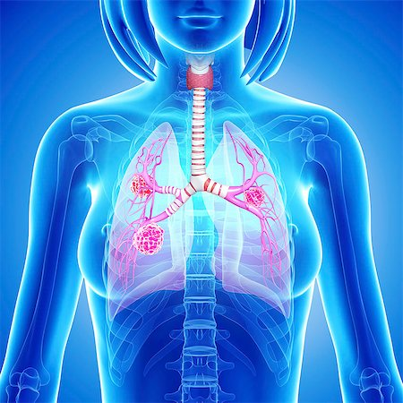 Female lung cancer, computer artwork. Stock Photo - Premium Royalty-Free, Code: 679-06711504
