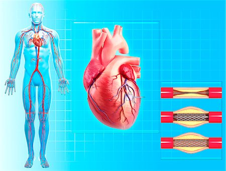 Balloon angioplasty. Computer artwork of a stent being placed in a narrowed blood vessel. Stock Photo - Premium Royalty-Free, Code: 679-06711752