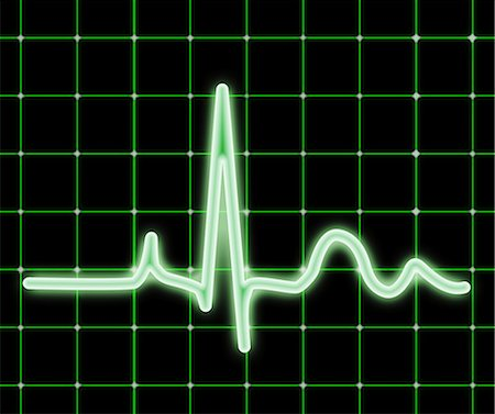 ECG. Computer artwork of an electrocardiogram (ECG) showing a normal heart rate. Stock Photo - Premium Royalty-Free, Code: 679-06713847