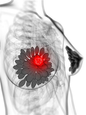 Breast cancer, computer artwork. Stock Photo - Premium Royalty-Free, Code: 679-06754322
