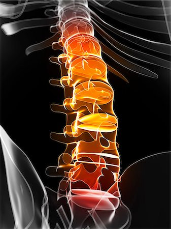 spinal column - Back pain, conceptual artwork Stock Photo - Premium Royalty-Free, Code: 679-06754972