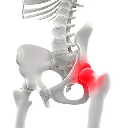 Hip pain, conceptual artwork Stock Photo - Premium Royalty-Free, Code: 679-06755001