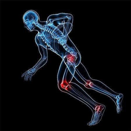 Sports injuries, conceptual artwork Stock Photo - Premium Royalty-Free, Code: 679-06755283