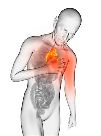 Heart attack, computer artwork. Stock Photo - Premium Royalty-Free, Code: 679-06780224