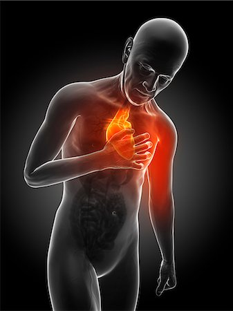 Heart attack, computer artwork. Stock Photo - Premium Royalty-Free, Code: 679-06780223