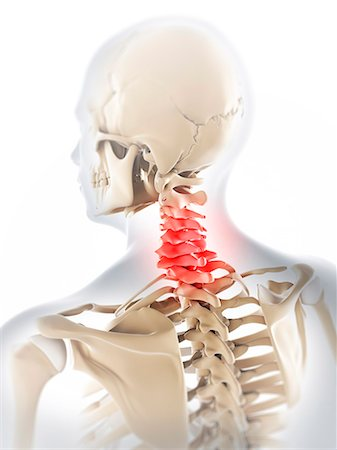 Neck pain, conceptual computer artwork. Stock Photo - Premium Royalty-Free, Code: 679-06780265