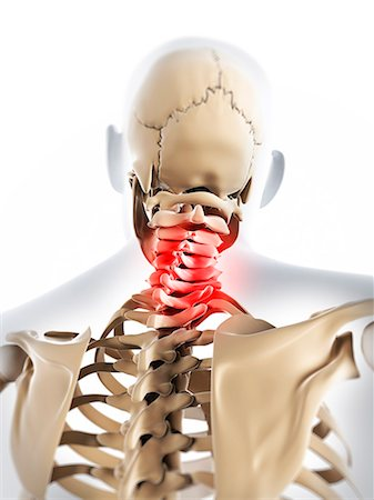 Neck pain, conceptual computer artwork. Stock Photo - Premium Royalty-Free, Code: 679-06780266