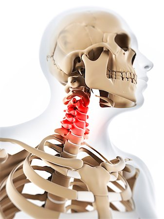 Neck pain, conceptual computer artwork. Stock Photo - Premium Royalty-Free, Code: 679-06780269