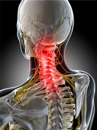 spinal column - Neck pain, conceptual computer artwork. Stock Photo - Premium Royalty-Free, Code: 679-06780287