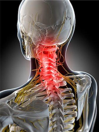 spinal column - Neck pain, conceptual computer artwork. Stock Photo - Premium Royalty-Free, Code: 679-06780287
