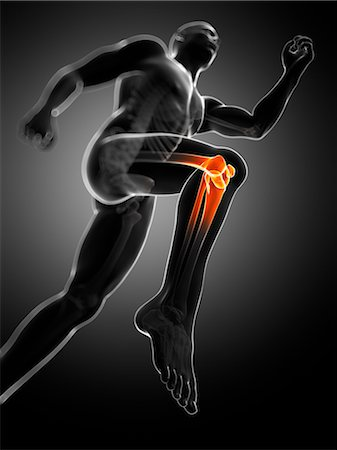 Knee pain, conceptual computer artwork. Stock Photo - Premium Royalty-Free, Code: 679-06780290