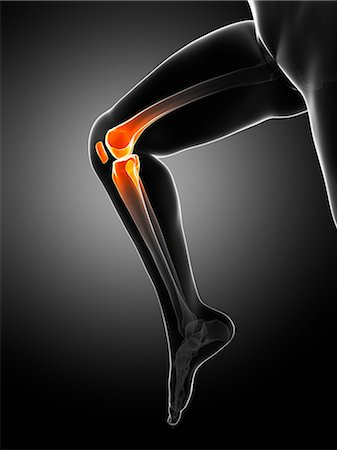 Knee pain, conceptual computer artwork. Stock Photo - Premium Royalty-Free, Code: 679-06780292