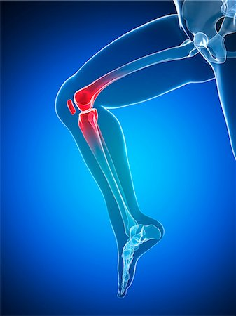 Knee pain, conceptual computer artwork. Stock Photo - Premium Royalty-Free, Code: 679-06780344